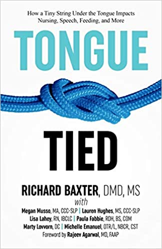 tonguetied
